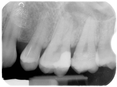 Upper molar root canal case